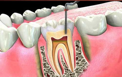 Endodonzia: sconfiggi il mal di denti grazie alla devitalizzazione