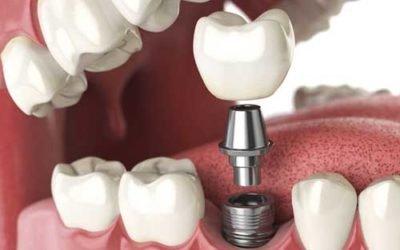 Implantologia: nuove radici in titanio