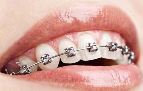 Ortodonzia Fissa: ottieni denti perfetti e regolari