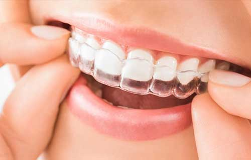 Ortodonzia Invisibile: scopri il nostro trattamento